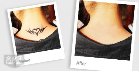 现在洗纹身还有没有留疤的那种激光一次就能洗掉